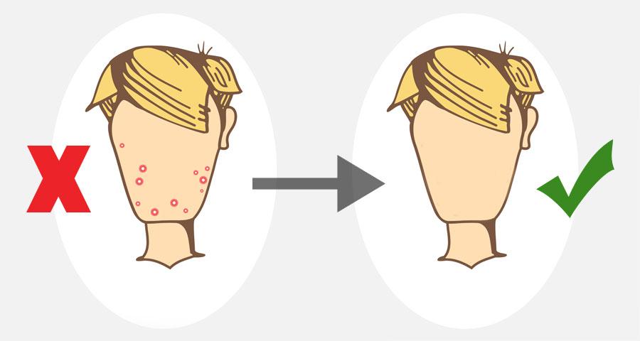 23ffcbfa669dd4d4ec4d0080c555ac03_showing-post-media-for-cartoon-skin-with-acne-wwwcartoonsmixcom-acne-cartoon-images_900-480